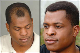 hair prothesis Sfx, prothesis.